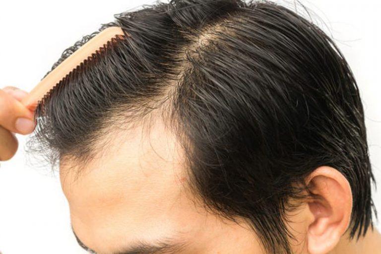 Saç Ekimi Kimlere Yapılır Ve Merkezlerin Önemi